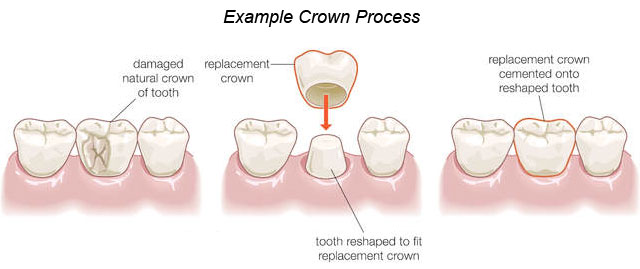 crown_process