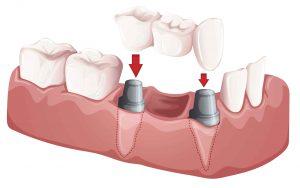 dental-bridges